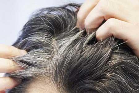 موهای خاکستری با برطرف استرس به رنگ طبیعی خود بازمی گردند